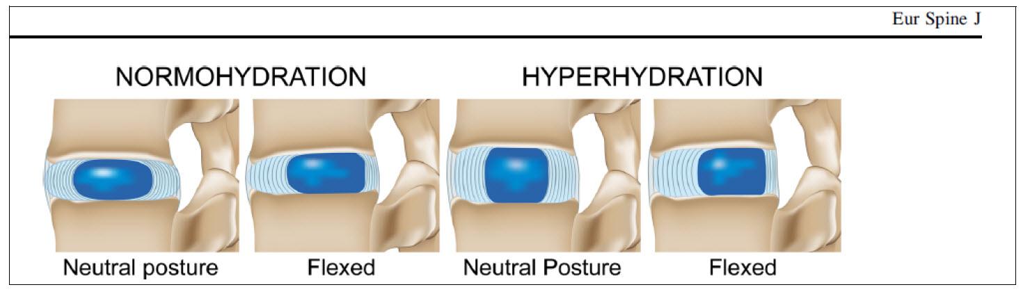 nekklachten rugklachten en hydratie nucleus