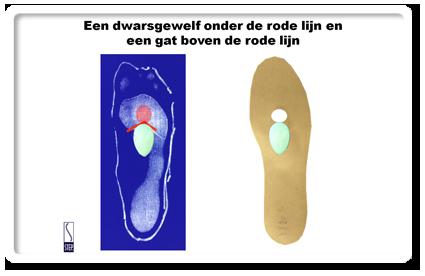 podologie drukpijn onder de voet